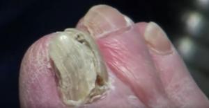 bild på nagelsvamp