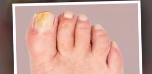 behandla nagelsvamp hemma med läkemedel från Apoteket